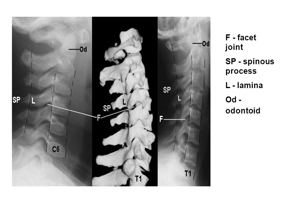 F - facet joint SP - spinous process L - lamina Od - odontoid