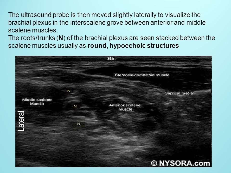 The ultrasound probe is then moved slightly laterally to visualize the brachial plexus in the interscalene grove between anterior and middle scalene m