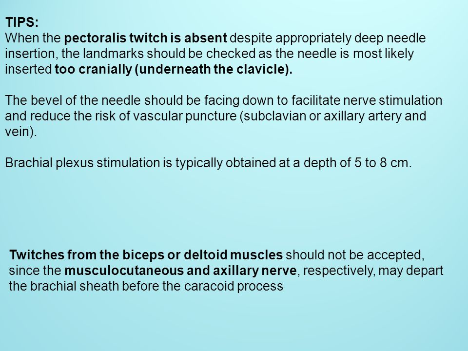 TIPS: When the pectoralis twitch is absent despite appropriately deep needle insertion, the landmarks should be checked as the needle is most likely i