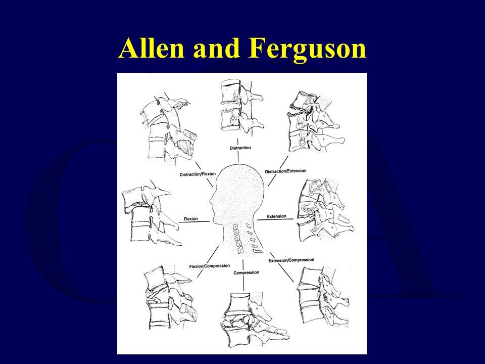 Allen and Ferguson