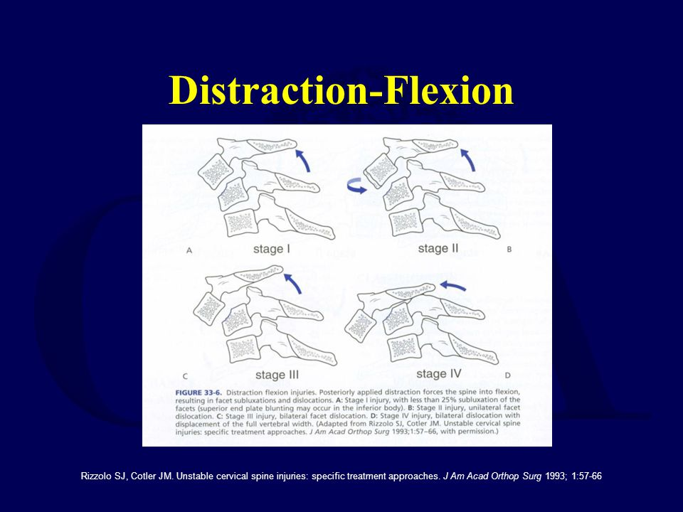 Distraction-Flexion Rizzolo SJ, Cotler JM. Unstable cervical spine injuries: specific treatment approaches. J Am Acad Orthop Surg 1993; 1:57-66