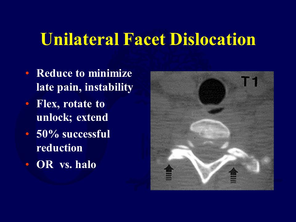Unilateral Facet Dislocation Reduce to minimize late pain, instability Flex, rotate to unlock; extend 50% successful reduction OR vs. halo