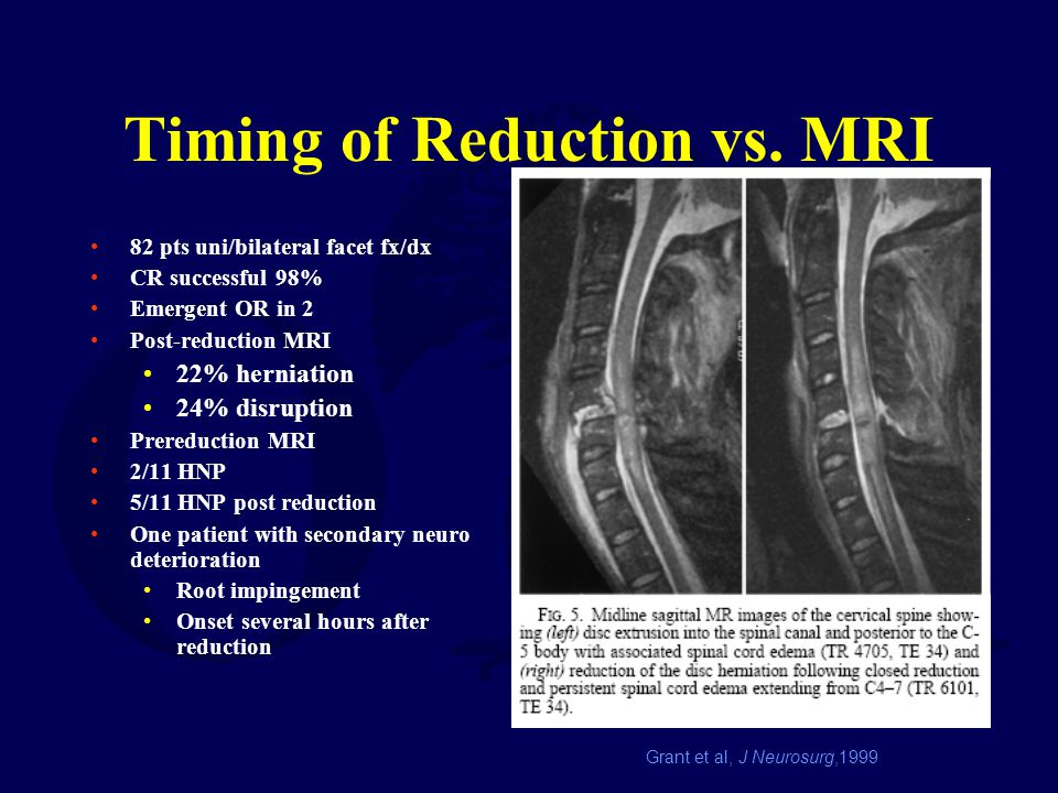 Timing of Reduction vs. MRI 82 pts uni/bilateral facet fx/dx CR successful 98% Emergent OR in 2 Post-reduction MRI 22% herniation 24% disruption Prere