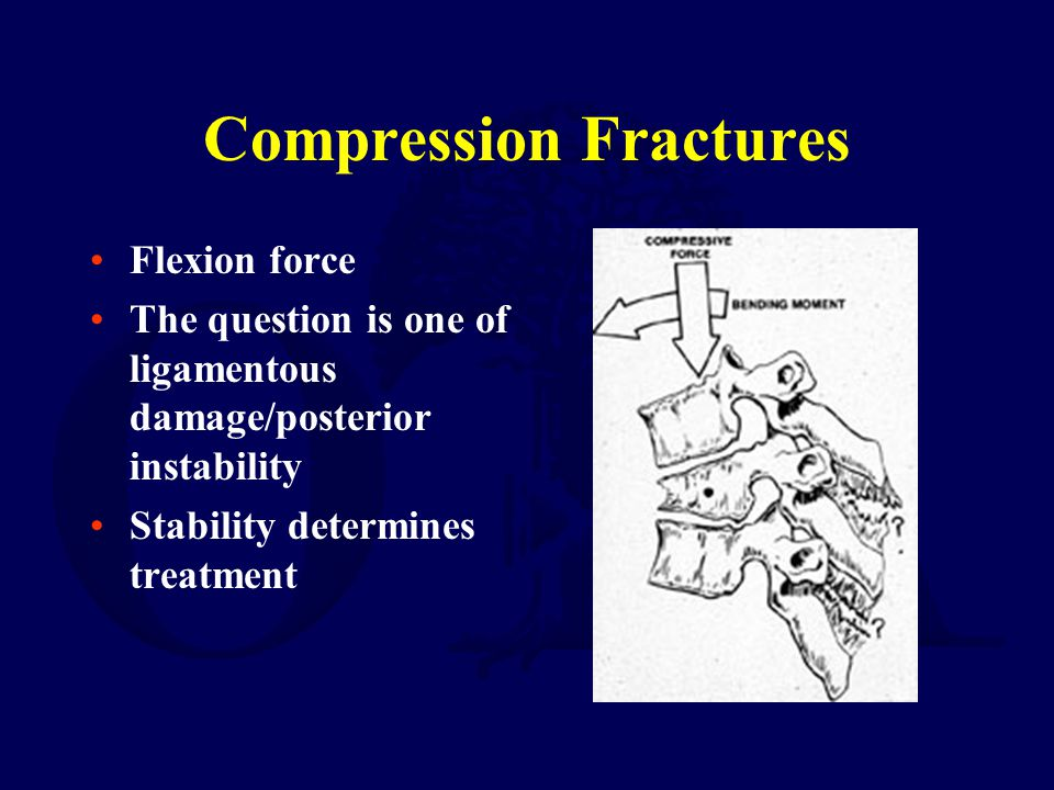 Compression Fractures Flexion force The question is one of ligamentous damage/posterior instability Stability determines treatment