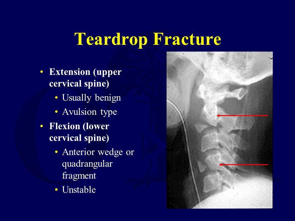 Teardrop Fracture Extension (upper cervical spine) Usually benign Avulsion type Flexion (lower cervical spine) Anterior wedge or quadrangular fragment