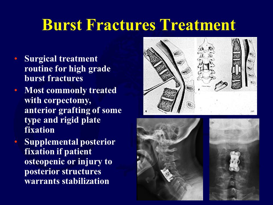 Burst Fractures Treatment Surgical treatment routine for high grade burst fractures Most commonly treated with corpectomy, anterior grafting of some t