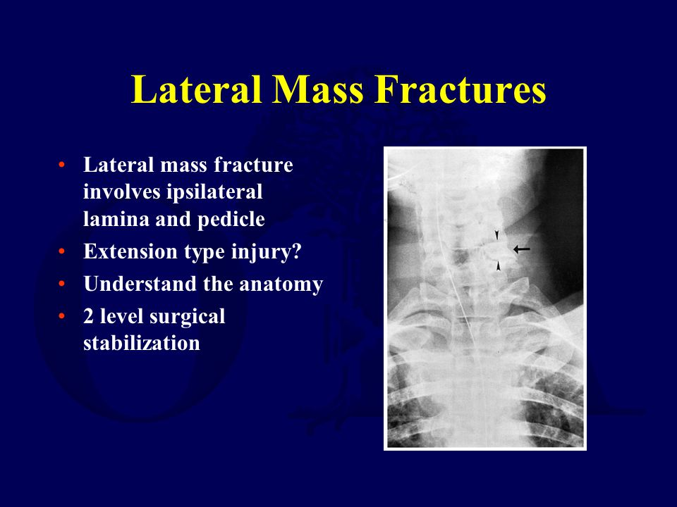 Lateral Mass Fractures Lateral mass fracture involves ipsilateral lamina and pedicle Extension type injury? Understand the anatomy 2 level surgical st