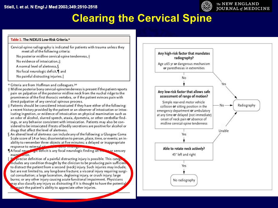 Clearing the Cervical Spine Stiell, I. et al. N Engl J Med 2003;349:2510-2518