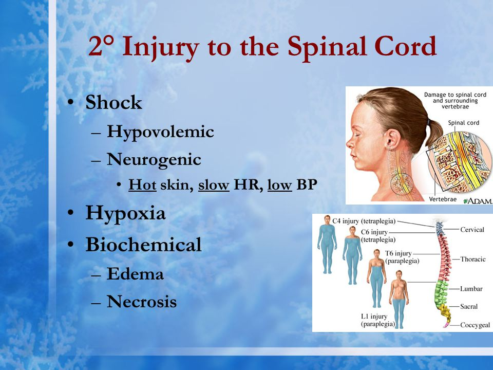 2° Injury to the Spinal Cord Shock –Hypovolemic –Neurogenic Hot skin, slow HR, low BP Hypoxia Biochemical –Edema –Necrosis