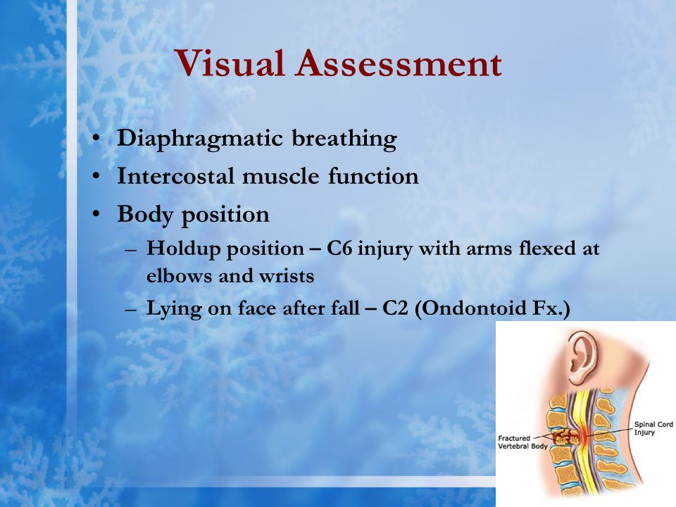 Visual Assessment Diaphragmatic breathing Intercostal muscle function Body position –Holdup position – C6 injury with arms flexed at elbows and wrists –Lying on face after fall – C2 (Ondontoid Fx.)