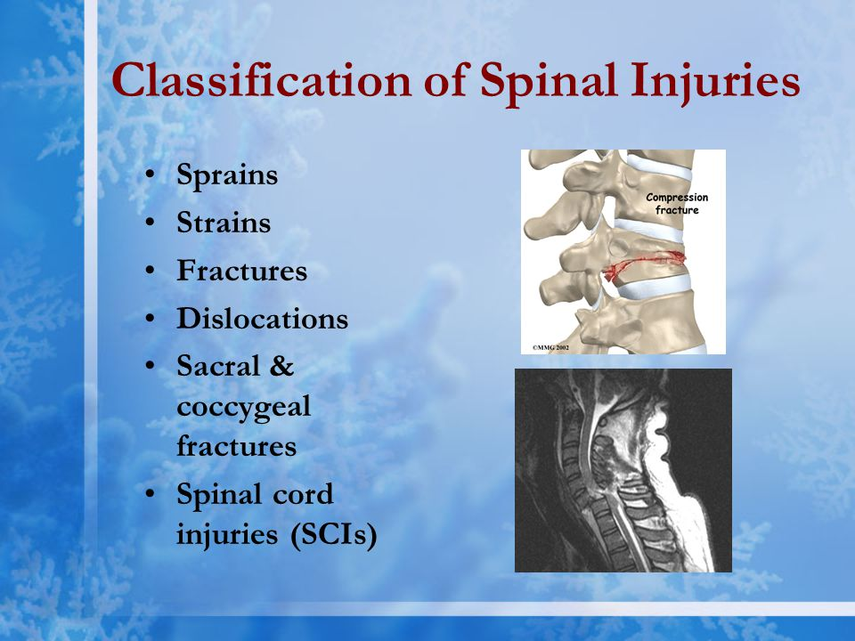 Classification of Spinal Injuries Sprains Strains Fractures Dislocations Sacral & coccygeal fractures Spinal cord injuries (SCIs)
