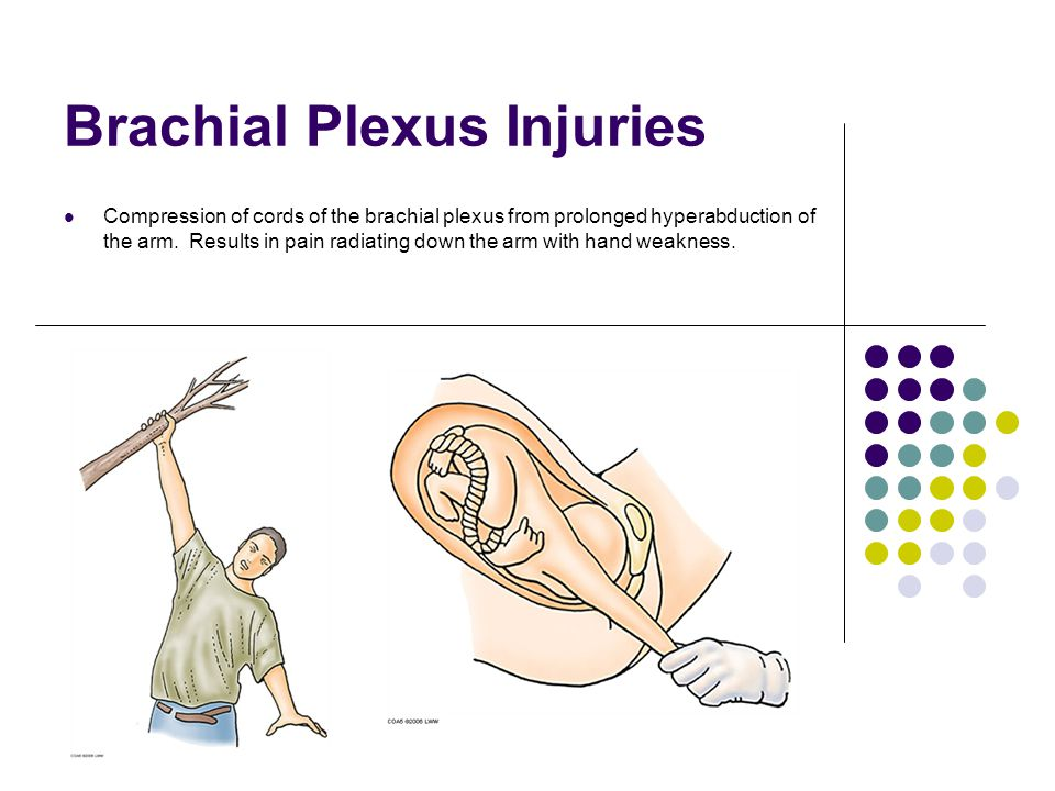 Brachial Plexus Injuries Compression of cords of the brachial plexus from prolonged hyperabduction of the arm. Results in pain radiating down the arm