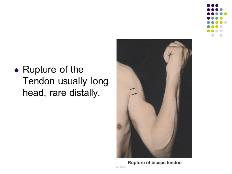 Rupture of the Tendon usually long head, rare distally.
