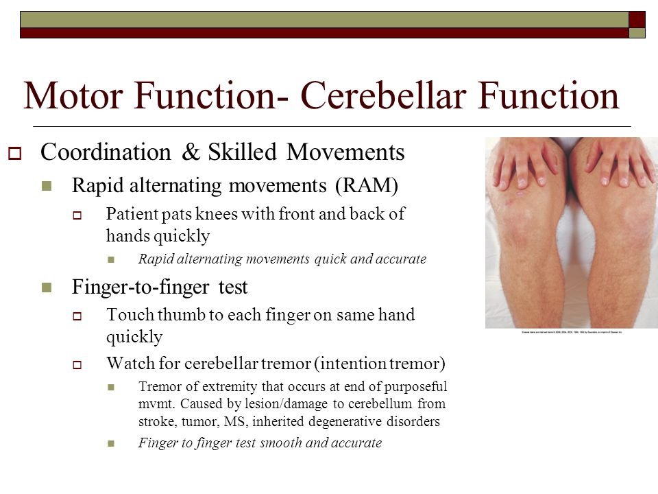 Motor Function- Cerebellar Function  Coordination & Skilled Movements Rapid alternating movements (RAM)  Patient pats knees with front and back of h