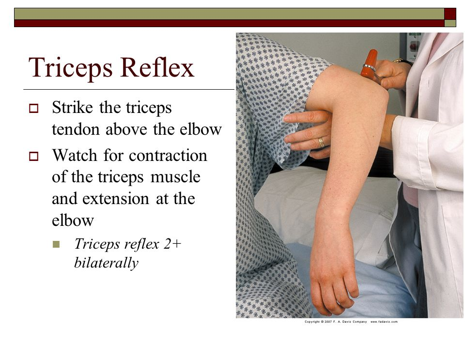 Triceps Reflex  Strike the triceps tendon above the elbow  Watch for contraction of the triceps muscle and extension at the elbow Triceps reflex 2+