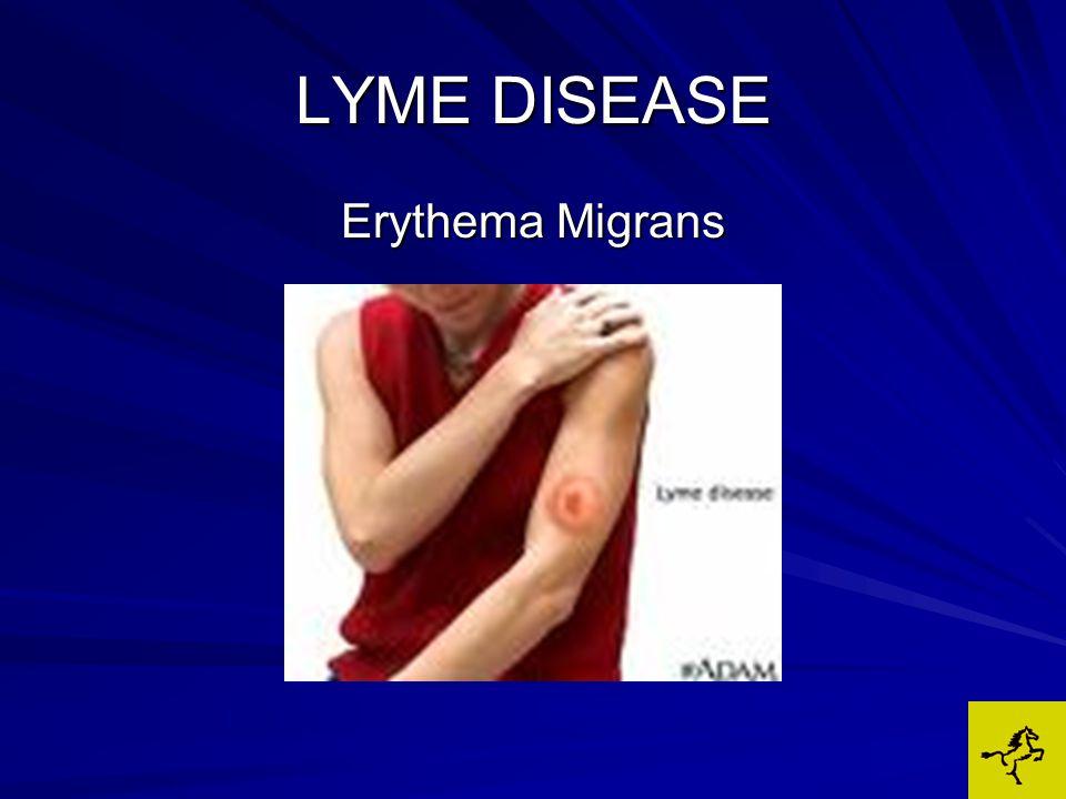 LYME DISEASE 1983 – spirochete named Borrelia burdorferi Borrelia burdorferi 1984 – First case of canine Lyme arthritis reported