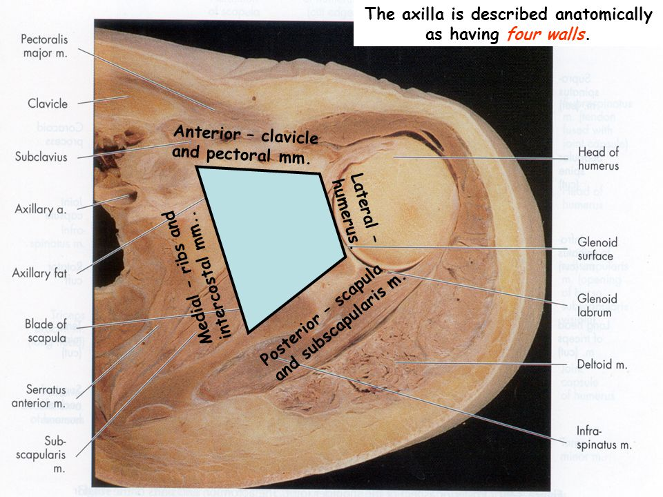 The axilla is described anatomically as having four walls.