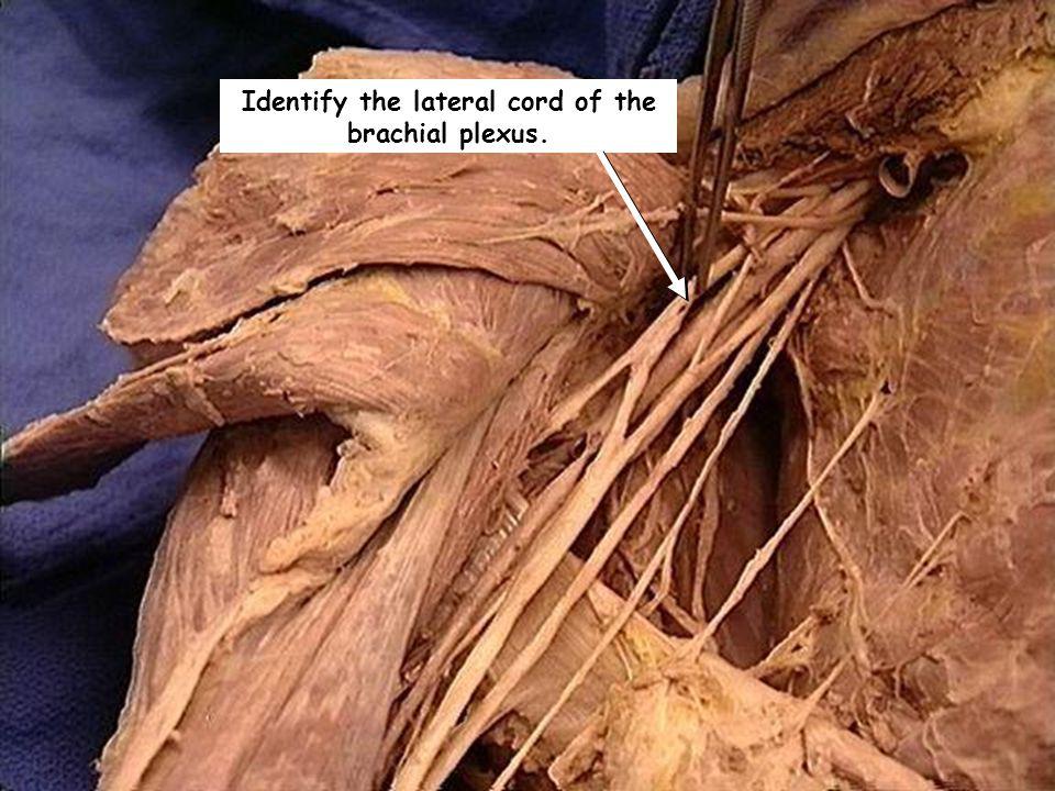 Identify the lateral cord of the brachial plexus.