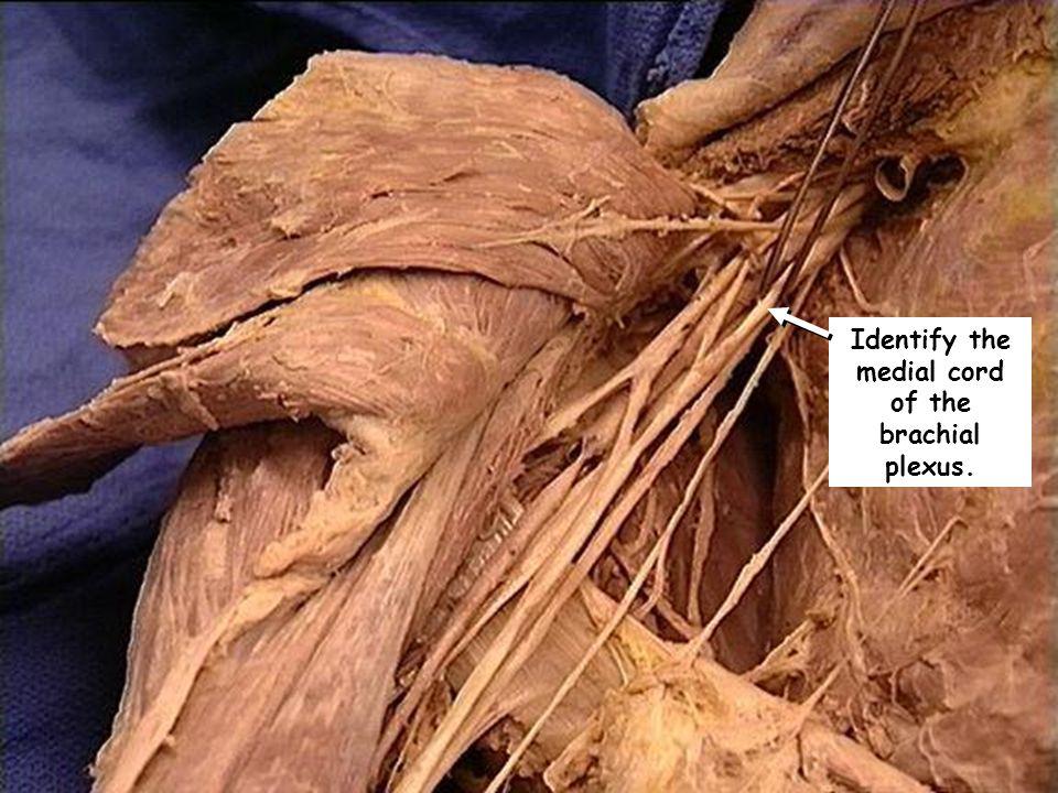 Identify the medial cord of the brachial plexus.