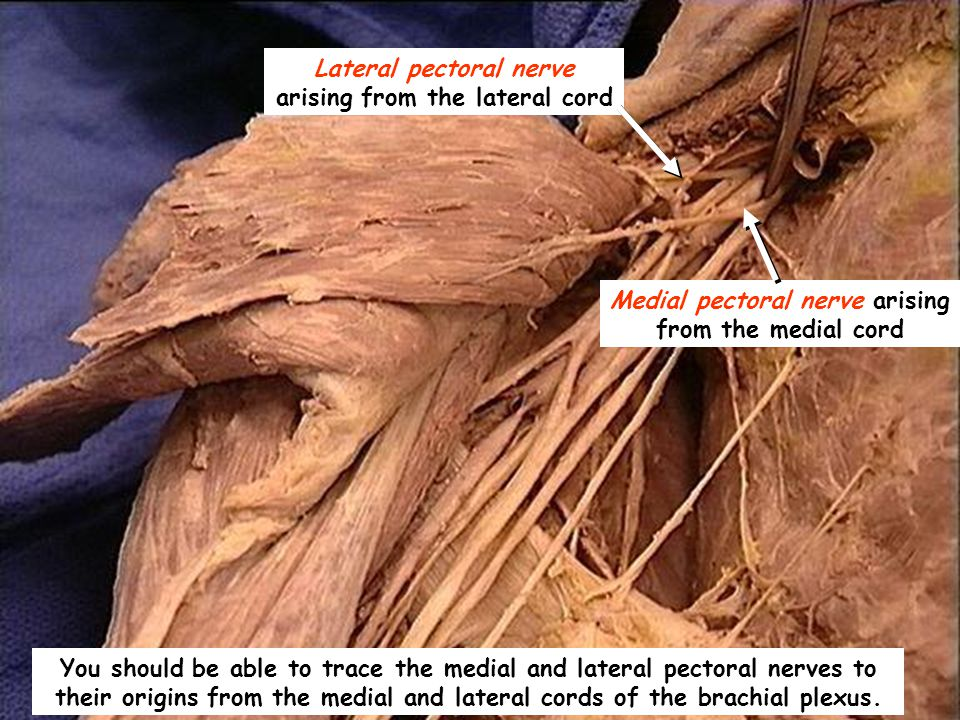 You should be able to trace the medial and lateral pectoral nerves to their origins from the medial and lateral cords of the brachial plexus.