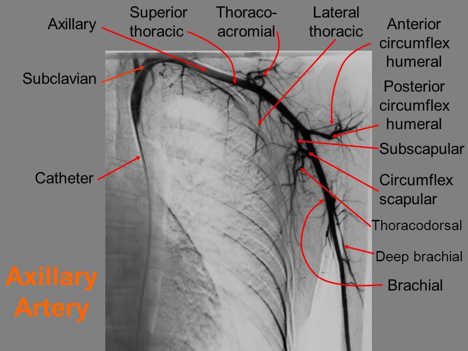 Axillary Subclavian Superior thoracic Thoraco- acromial Lateral thoracic Anterior circumflex humeral Posterior circumflex humeral Subscapular Circumflex scapular Thoracodorsal Deep brachial Brachial Catheter Axillary Artery