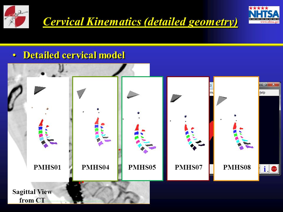 Detailed cervical model Sagittal View from CT PMHS01 PMHS04 PMHS05 PMHS07 PMHS08 Cervical Kinematics (detailed geometry)