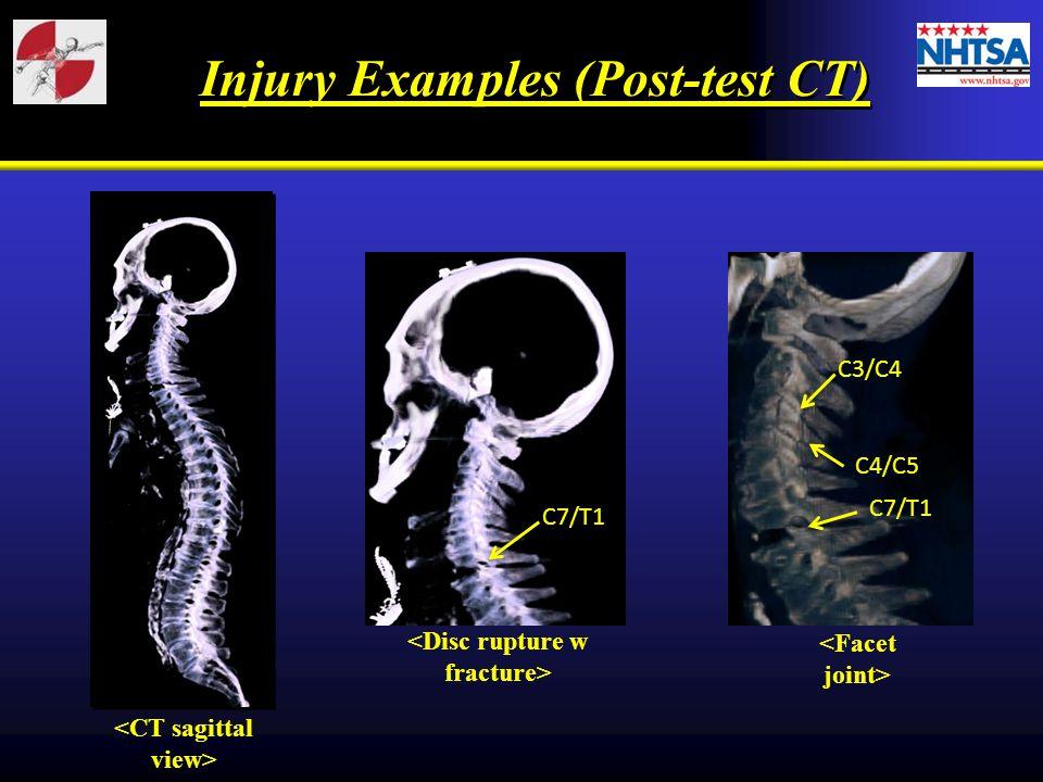 C7/T1 C3/C4 C4/C5 C7/T1 Injury Examples (Post-test CT)