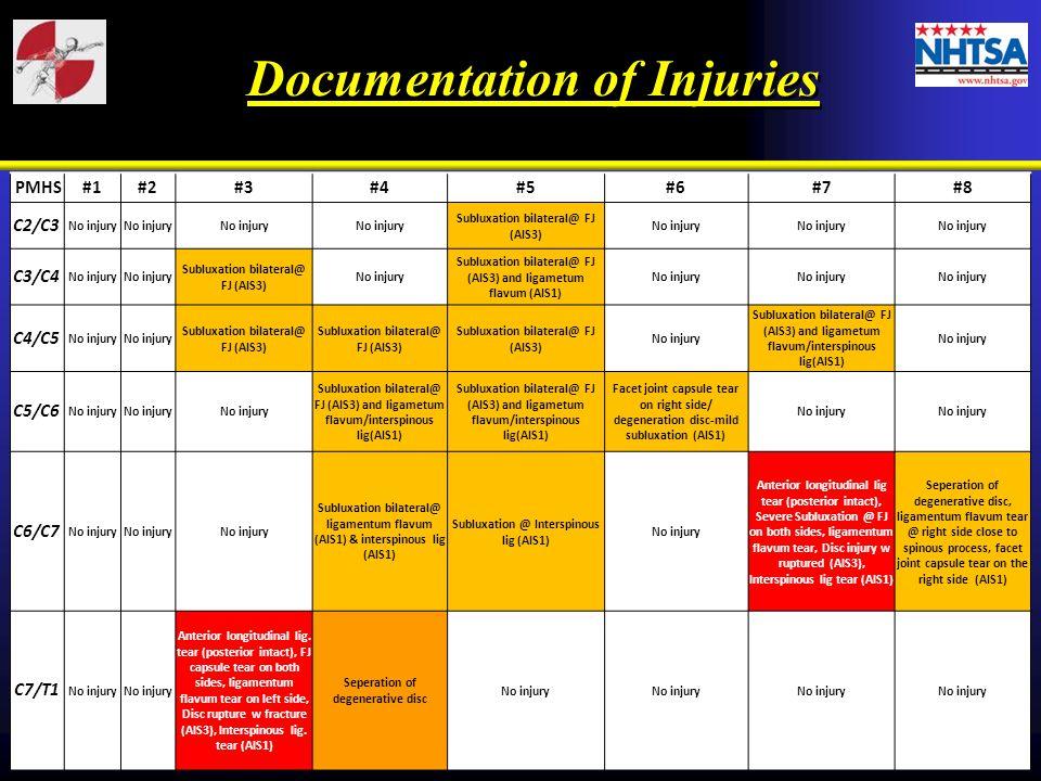PMHS#1#2#3#4#5#6#7#8 C2/C3 No injury Subluxation bilateral@ FJ (AIS3) No injury C3/C4 No injury Subluxation bilateral@ FJ (AIS3) No injury Subluxation bilateral@ FJ (AIS3) and ligametum flavum (AIS1) No injury C4/C5 No injury Subluxation bilateral@ FJ (AIS3) No injury Subluxation bilateral@ FJ (AIS3) and ligametum flavum/interspinous lig(AIS1) No injury C5/C6 No injury Subluxation bilateral@ FJ (AIS3) and ligametum flavum/interspinous lig(AIS1) Facet joint capsule tear on right side/ degeneration disc-mild subluxation (AIS1) No injury C6/C7 No injury Subluxation bilateral@ ligamentum flavum (AIS1) & interspinous lig (AIS1) Subluxation @ Interspinous lig (AIS1) No injury Anterior longitudinal lig tear (posterior intact), Severe Subluxation @ FJ on both sides, ligamentum flavum tear, Disc injury w ruptured (AIS3), Interspinous lig tear (AIS1) Seperation of degenerative disc, ligamentum flavum tear @ right side close to spinous process, facet joint capsule tear on the right side (AIS1) C7/T1 No injury Anterior longitudinal lig.