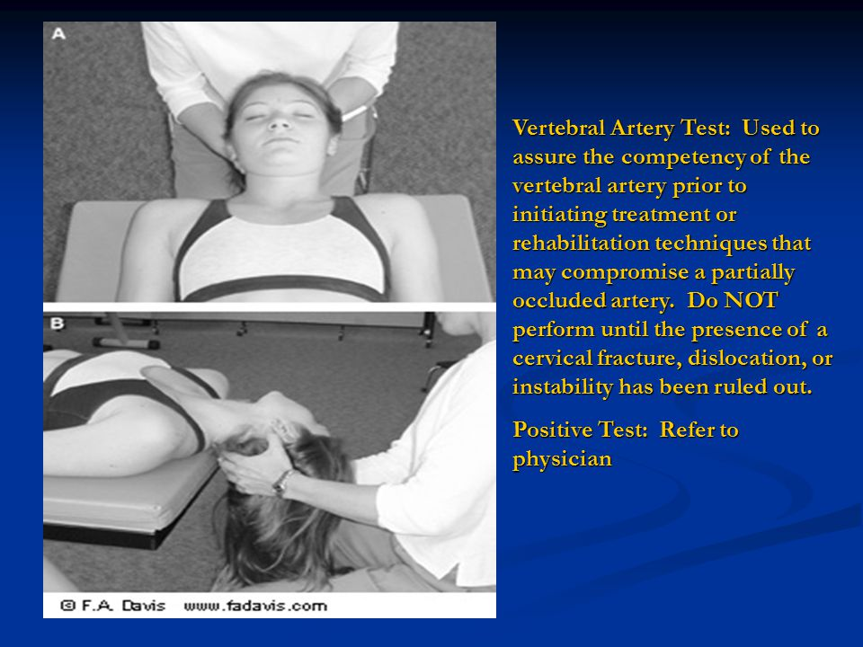 Vertebral Artery Test: Used to assure the competency of the vertebral artery prior to initiating treatment or rehabilitation techniques that may compr