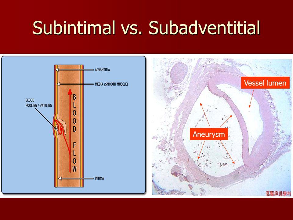 Subintimal vs. Subadventitial Vessel lumen Aneurysm