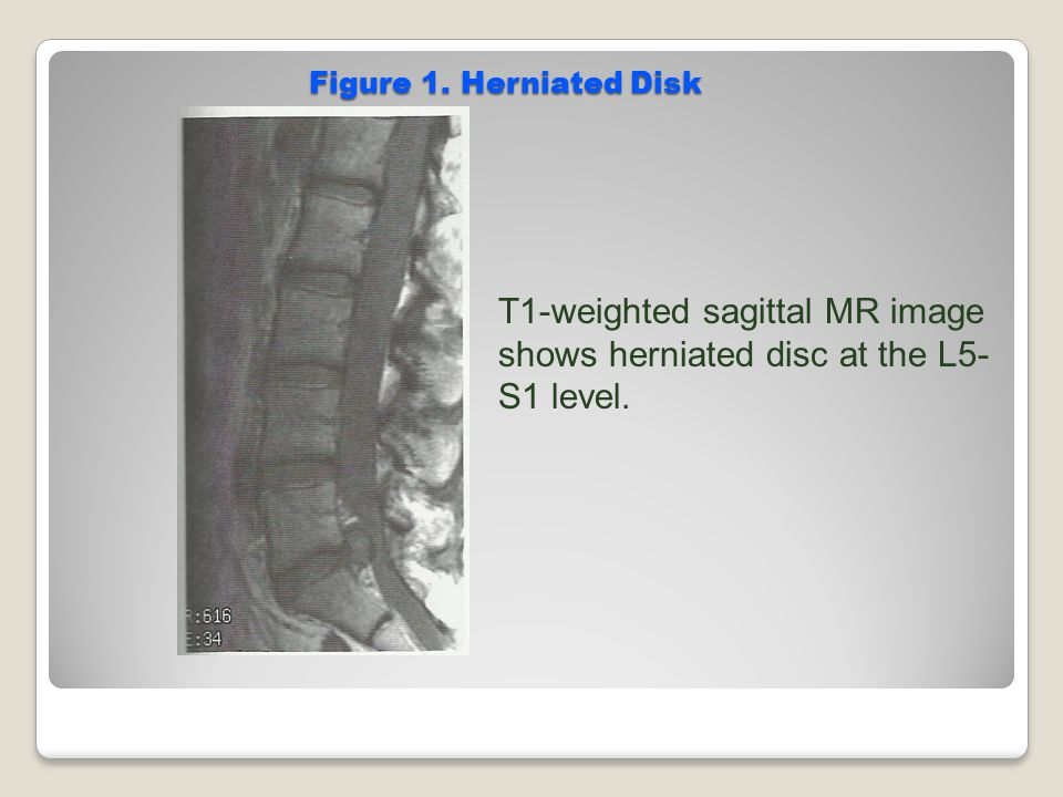 Figure 1. Herniated Disk T1-weighted sagittal MR image shows herniated disc at the L5- S1 level.