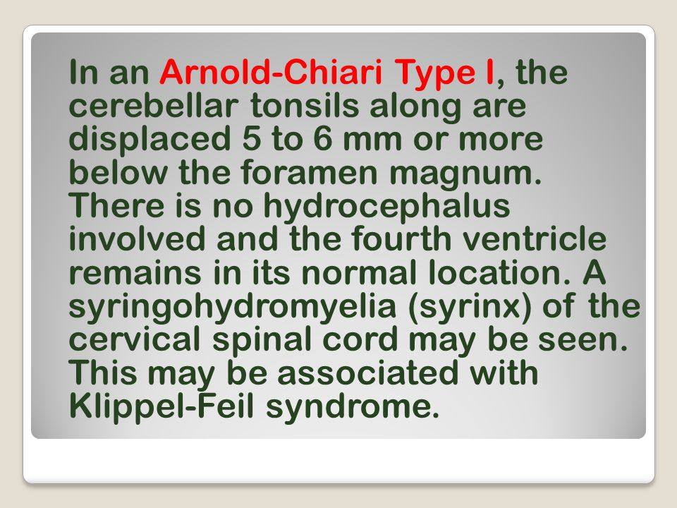 In an Arnold-Chiari Type I, the cerebellar tonsils along are displaced 5 to 6 mm or more below the foramen magnum. There is no hydrocephalus involved
