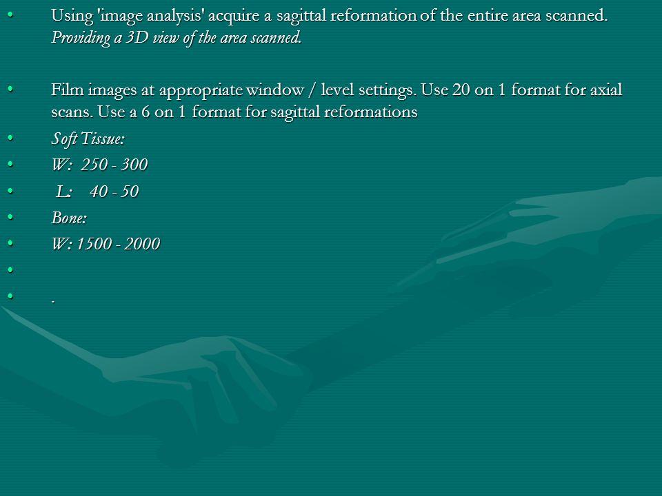 نمایی از پوزیشن بیمار برای سی تی از لومبار L1 L5 S