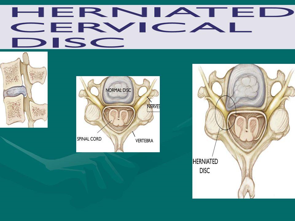 پوزیشن بیمار برای سی تی اسکن از گردن نمایی از