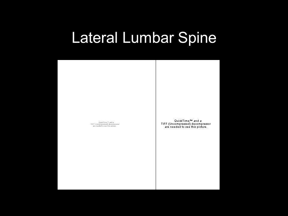Lateral Lumbar Spine