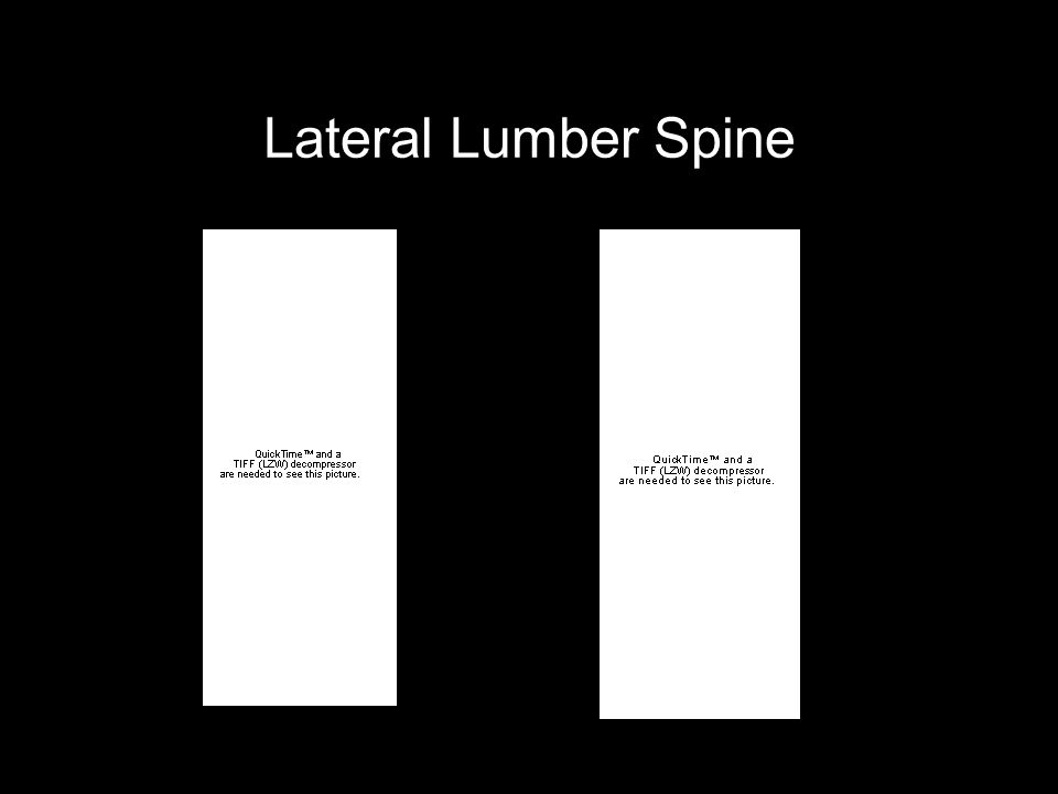 Lateral Lumber Spine