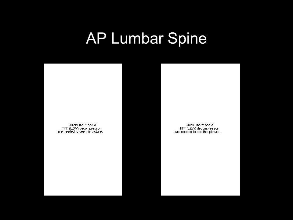 AP Lumbar Spine