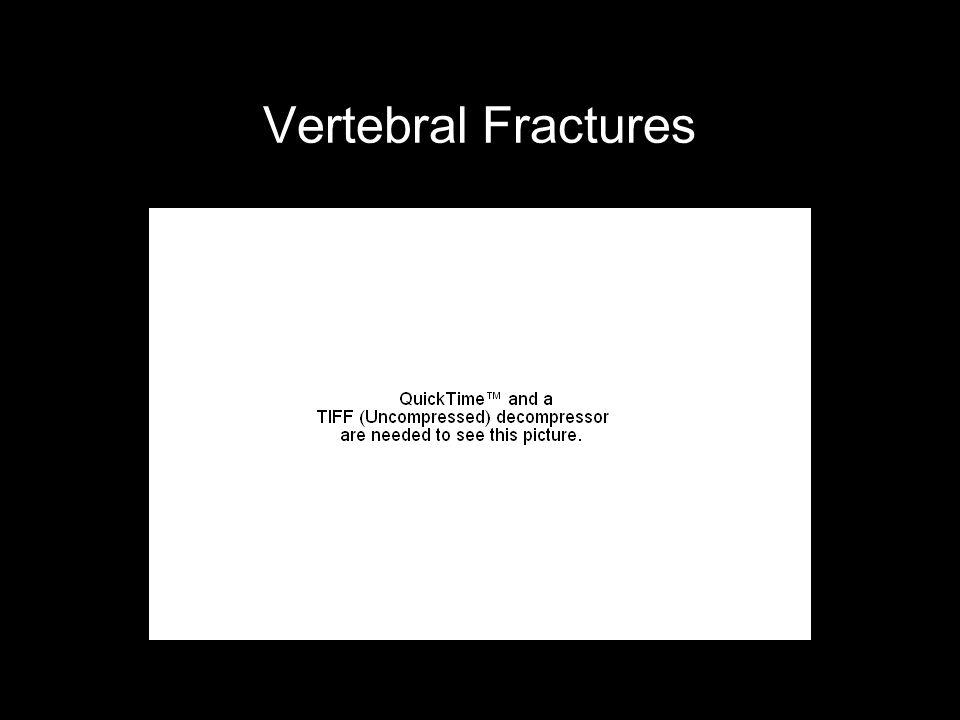 Vertebral Fractures