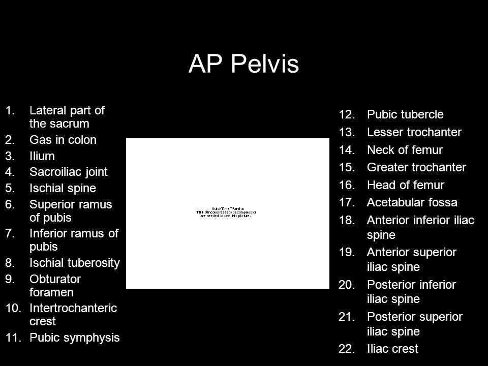 AP Pelvis 1.Lateral part of the sacrum 2.Gas in colon 3.Ilium 4.Sacroiliac joint 5.Ischial spine 6.Superior ramus of pubis 7.Inferior ramus of pubis 8.Ischial tuberosity 9.Obturator foramen 10.Intertrochanteric crest 11.Pubic symphysis 12.Pubic tubercle 13.Lesser trochanter 14.Neck of femur 15.Greater trochanter 16.Head of femur 17.Acetabular fossa 18.Anterior inferior iliac spine 19.Anterior superior iliac spine 20.Posterior inferior iliac spine 21.Posterior superior iliac spine 22.Iliac crest