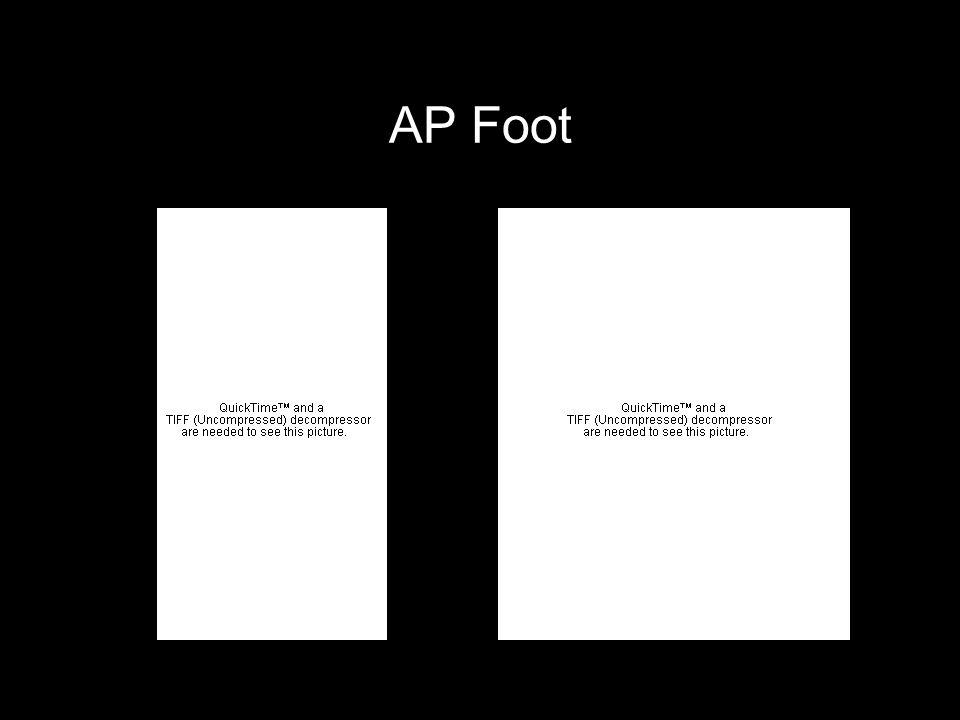 AP Foot
