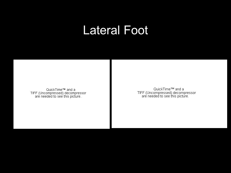 Lateral Foot