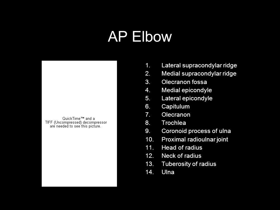 AP Elbow 1.Lateral supracondylar ridge 2.Medial supracondylar ridge 3.Olecranon fossa 4.Medial epicondyle 5.Lateral epicondyle 6.Capitulum 7.Olecranon 8.Trochlea 9.Coronoid process of ulna 10.Proximal radioulnar joint 11.Head of radius 12.Neck of radius 13.Tuberosity of radius 14.Ulna