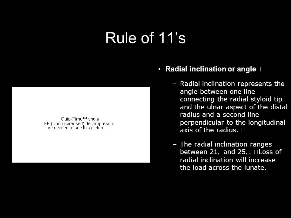 Rule of 11's Radial inclination or angle –Radial inclination represents the angle between one line connecting the radial styloid tip and the ulnar asp
