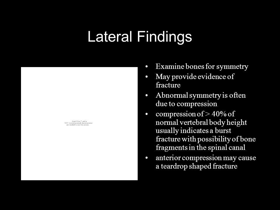 Lateral Findings Examine bones for symmetry May provide evidence of fracture Abnormal symmetry is often due to compression compression of > 40% of normal vertebral body height usually indicates a burst fracture with possibility of bone fragments in the spinal canal anterior compression may cause a teardrop shaped fracture