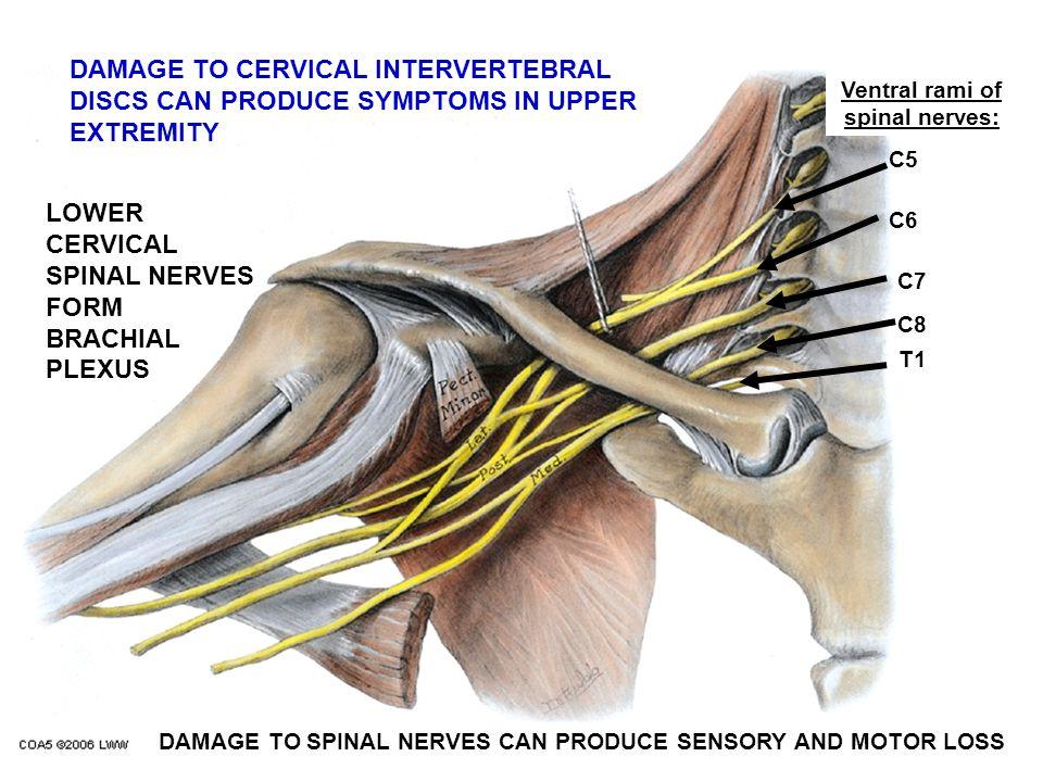 C5 C6 C7 C8 T1 Ventral rami of spinal nerves: DAMAGE TO CERVICAL INTERVERTEBRAL DISCS CAN PRODUCE SYMPTOMS IN UPPER EXTREMITY LOWER CERVICAL SPINAL NE