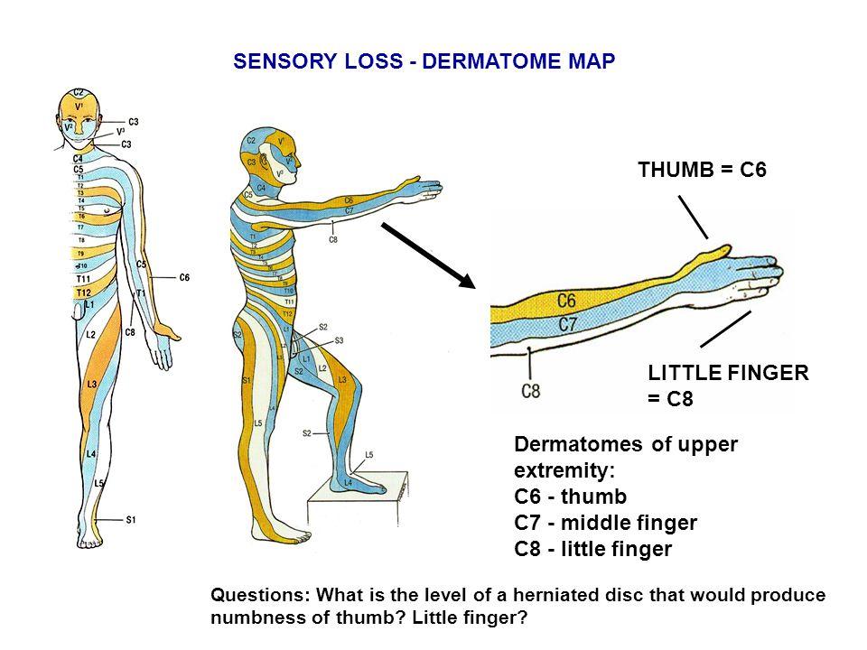 Dermatomes of upper extremity: C6 - thumb C7 - middle finger C8 - little finger SENSORY LOSS - DERMATOME MAP THUMB = C6 LITTLE FINGER = C8 Questions: