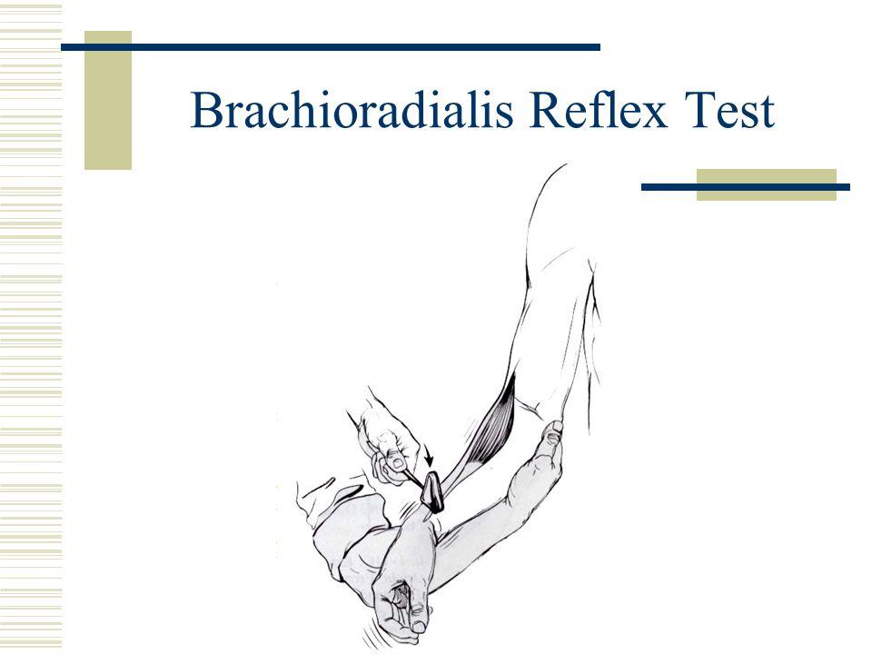Brachioradialis Reflex Test