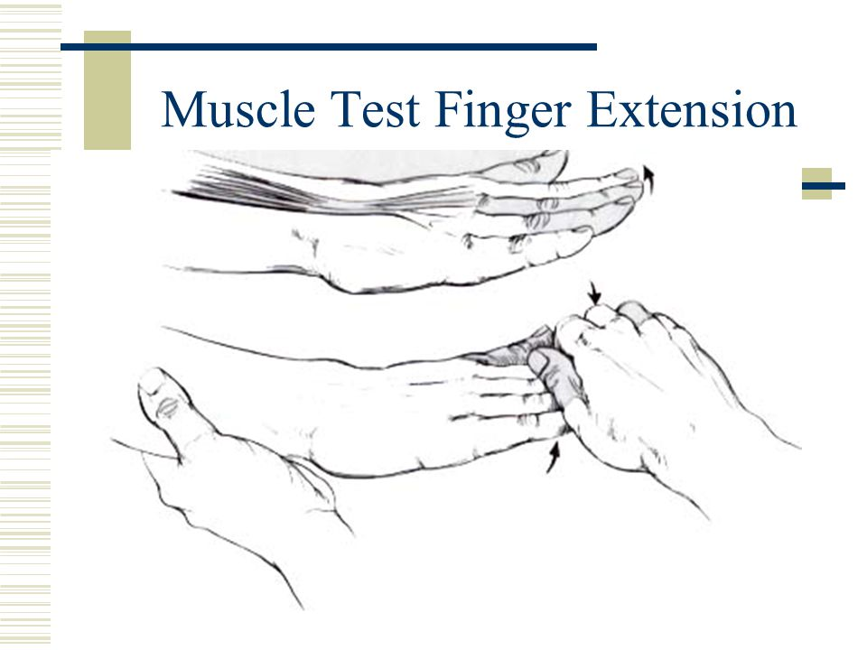 Muscle Test Finger Extension