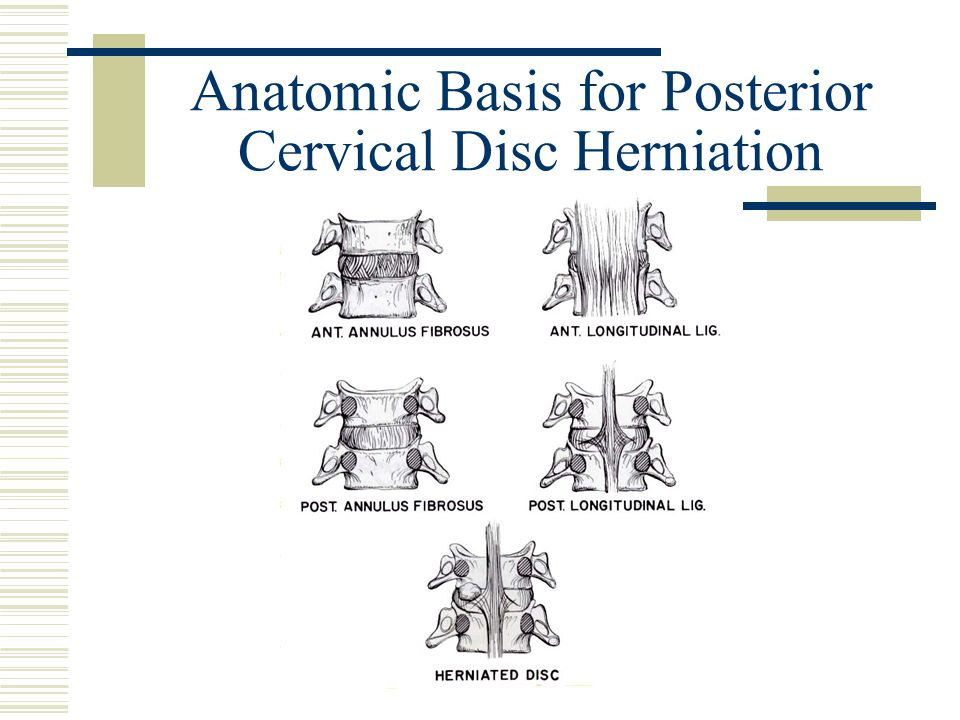 Anatomic Basis for Posterior Cervical Disc Herniation