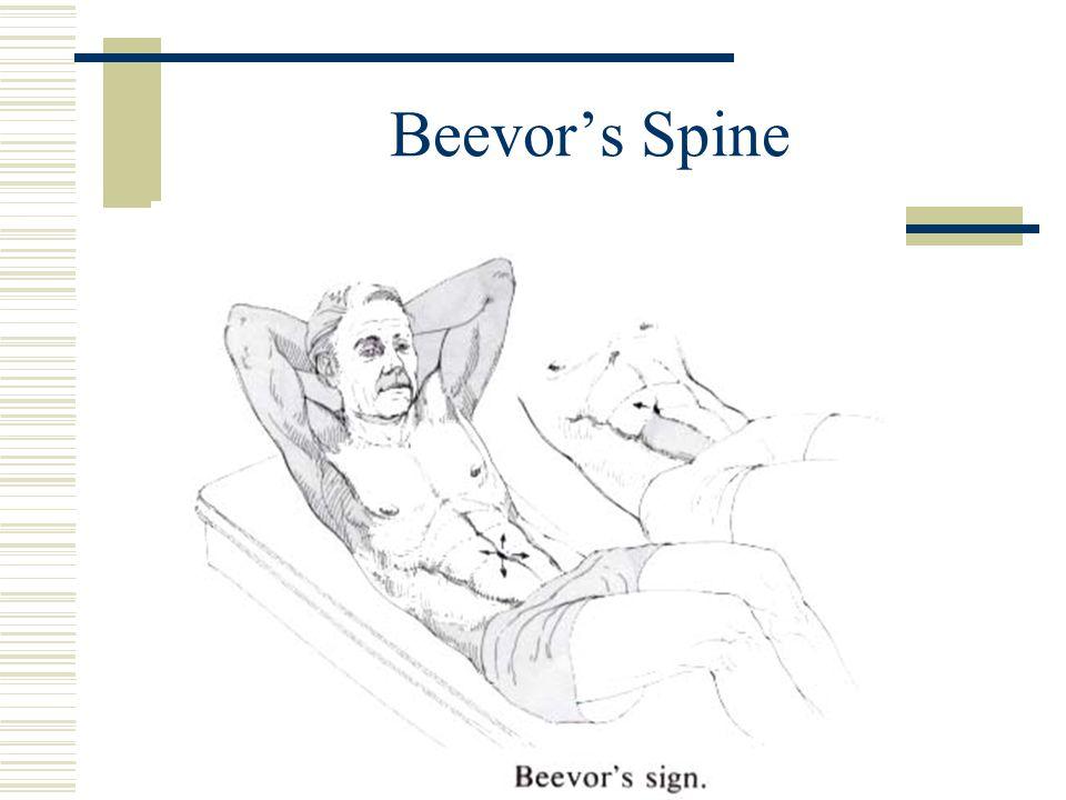Beevor's Spine